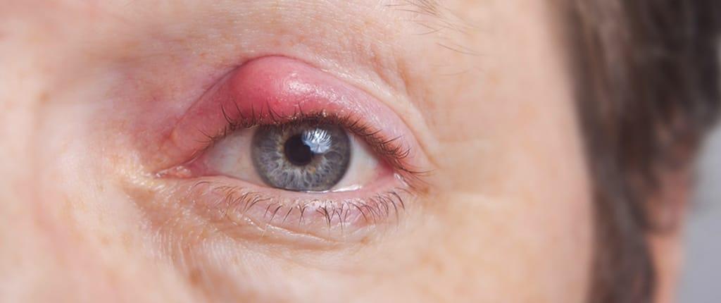 Auge mit Gerstenkorn
