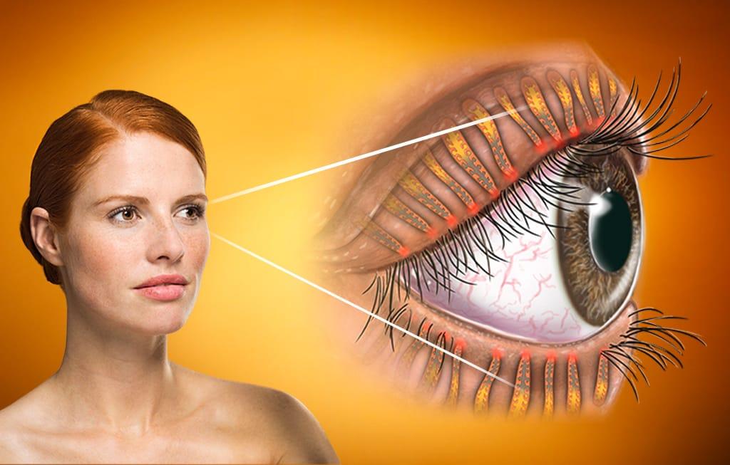Detailansicht Augenlider als Schutzapparat der Augen.